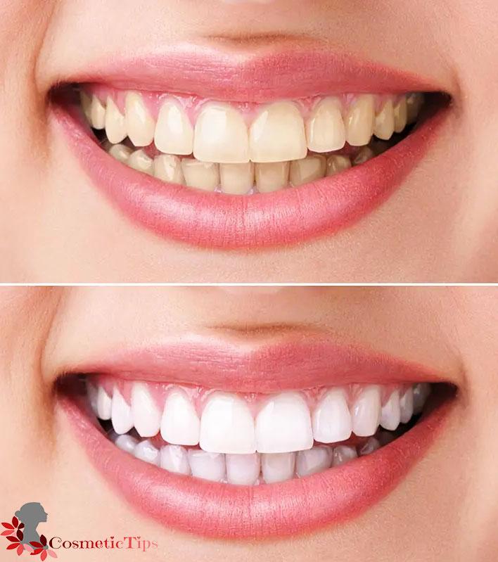 سفید کردن خانگی دندان با هیدروژن پراکسید